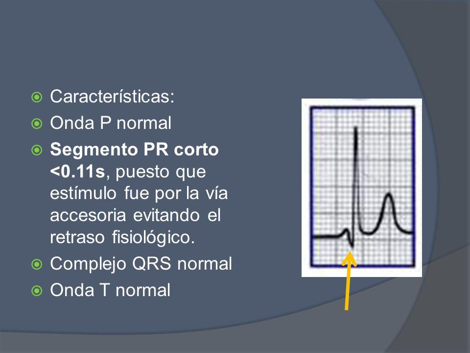 Características:Onda P normal. Segmento PR corto <0.11s, puesto que estímulo fue por la vía accesoria evitando el retraso fisiológico.