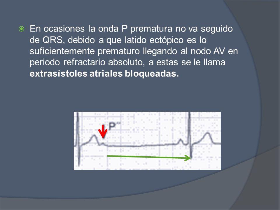 En ocasiones la onda P prematura no va seguido de QRS, debido a que latido ectópico es lo suficientemente prematuro llegando al nodo AV en periodo refractario absoluto, a estas se le llama extrasístoles atriales bloqueadas.