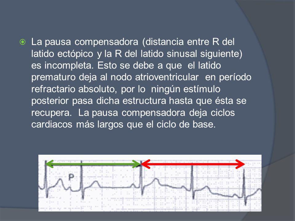 La pausa compensadora (distancia entre R del latido ectópico y la R del latido sinusal siguiente) es incompleta.