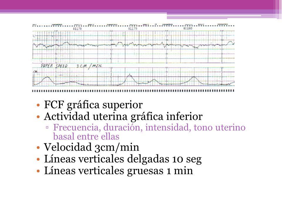 Actividad uterina gráfica inferior Velocidad 3cm/min