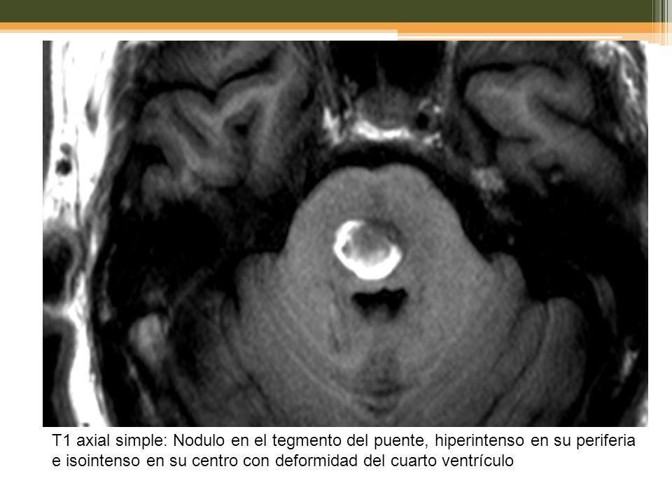 T1 axial simple: Nodulo en el tegmento del puente, hiperintenso en su periferia e isointenso en su centro con deformidad del cuarto ventrículo