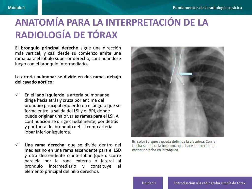 Asombroso Arteria Pulmonar Anatomía Radiología Galería - Imágenes de ...