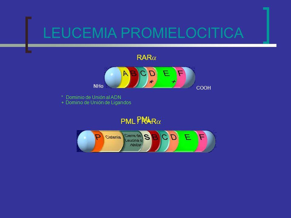 LEUCEMIA PROMIELOCITICA