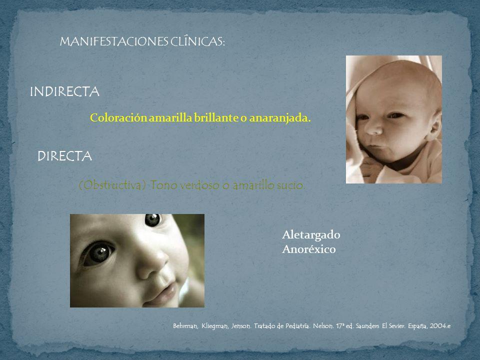 INDIRECTA DIRECTA MANIFESTACIONES CLÍNICAS:
