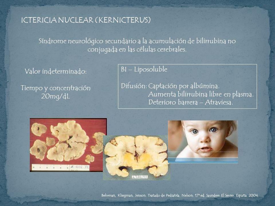 ICTERICIA NUCLEAR (KERNICTERUS)