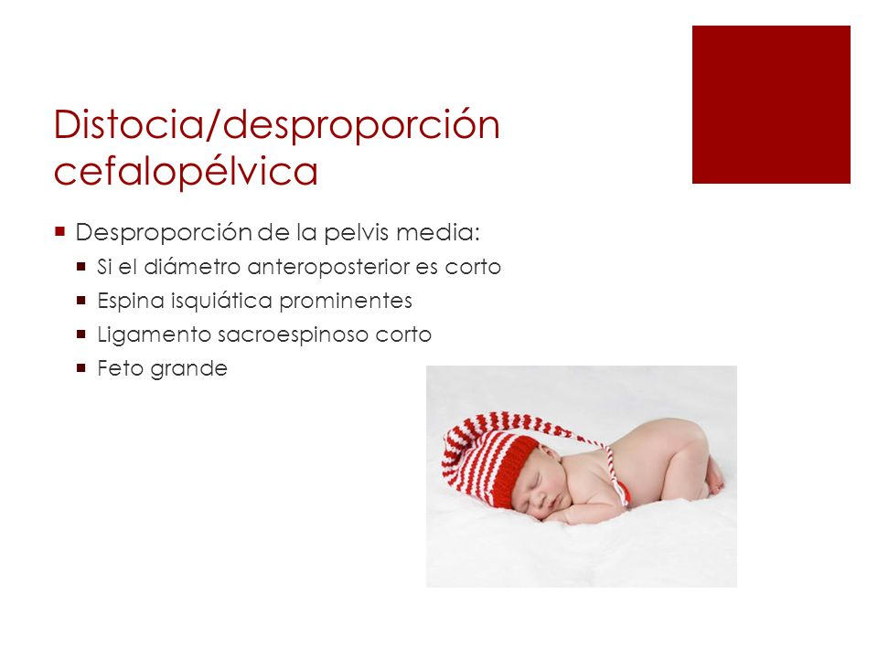 Distocia/desproporción cefalopélvica