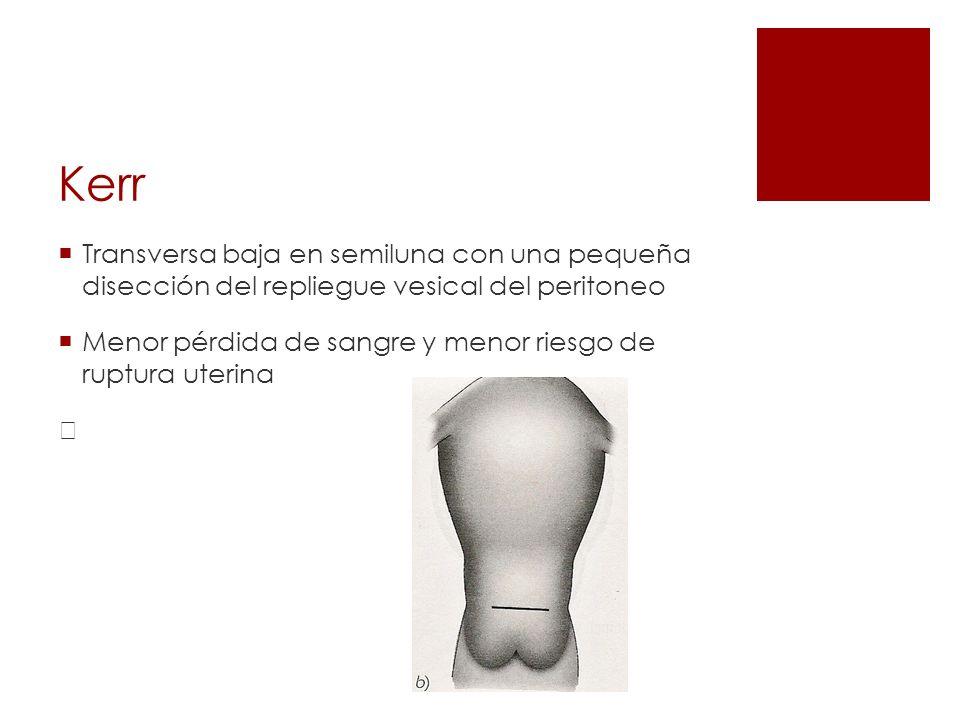 Kerr Transversa baja en semiluna con una pequeña disección del repliegue vesical del peritoneo.