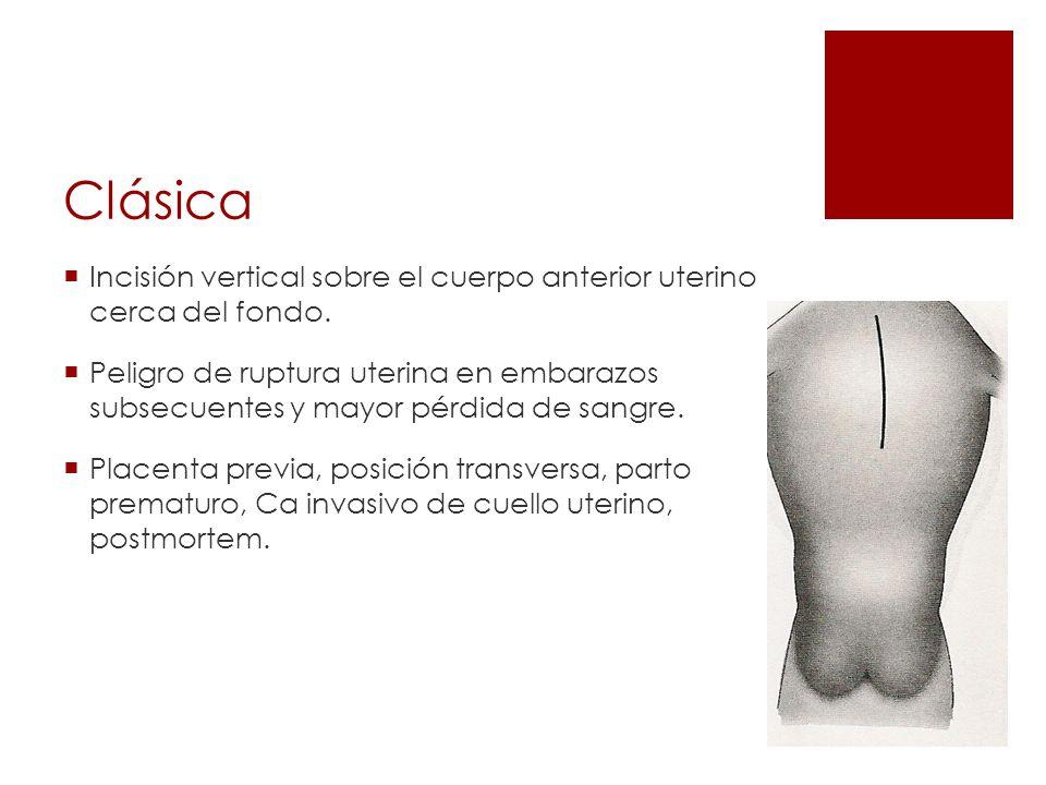 Clásica Incisión vertical sobre el cuerpo anterior uterino cerca del fondo.
