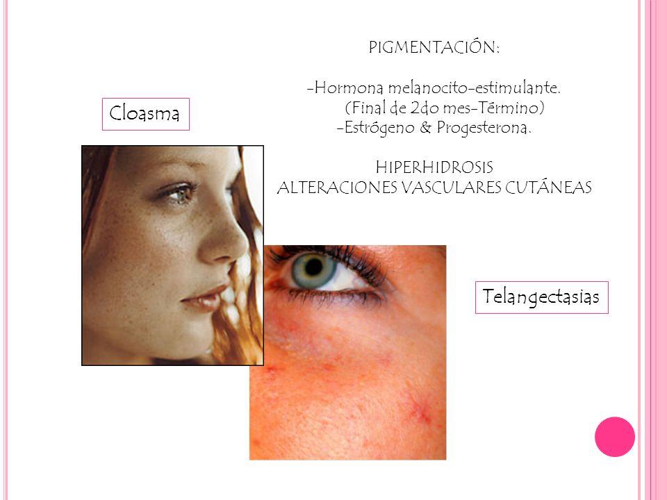 Cloasma Telangectasias PIGMENTACIÓN: -Hormona melanocito-estimulante.
