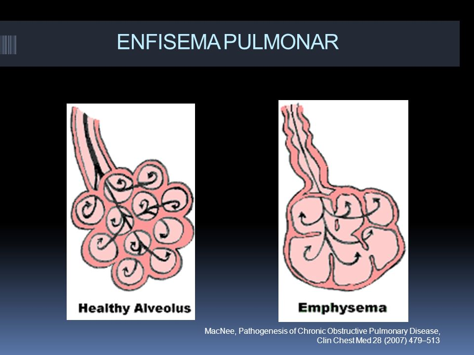 ENFISEMA PULMONAR MacNee, Pathogenesis of Chronic Obstructive Pulmonary Disease, Clin Chest Med 28 (2007) 479–513.