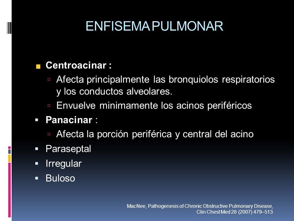 ENFISEMA PULMONAR Centroacinar :