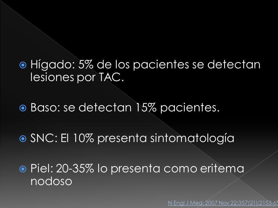 Hígado: 5% de los pacientes se detectan lesiones por TAC.