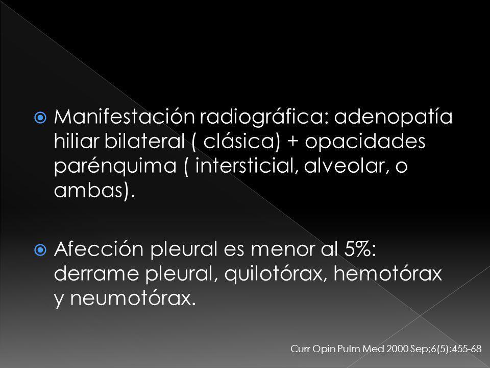 Manifestación radiográfica: adenopatía hiliar bilateral ( clásica) + opacidades parénquima ( intersticial, alveolar, o ambas).