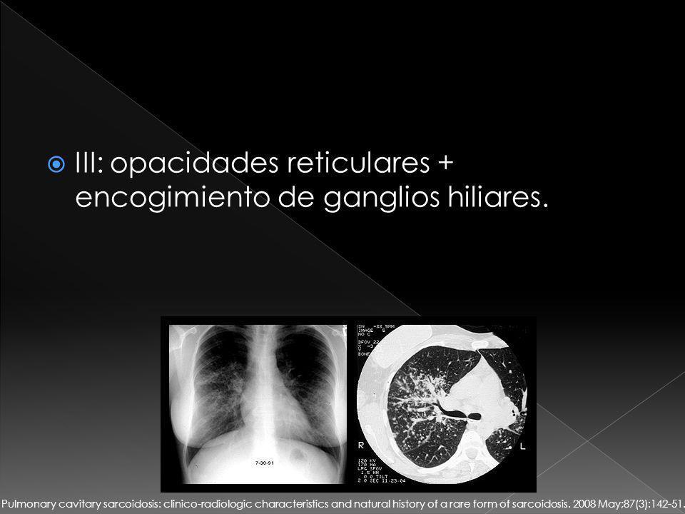 III: opacidades reticulares + encogimiento de ganglios hiliares.