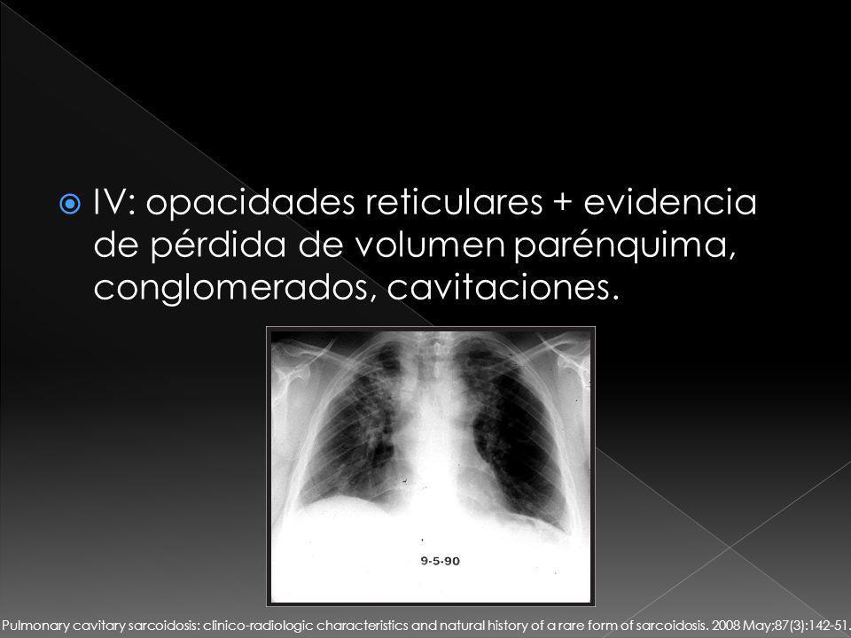 IV: opacidades reticulares + evidencia de pérdida de volumen parénquima, conglomerados, cavitaciones.