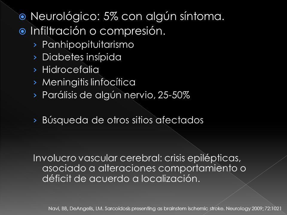 Neurológico: 5% con algún síntoma. Infiltración o compresión.