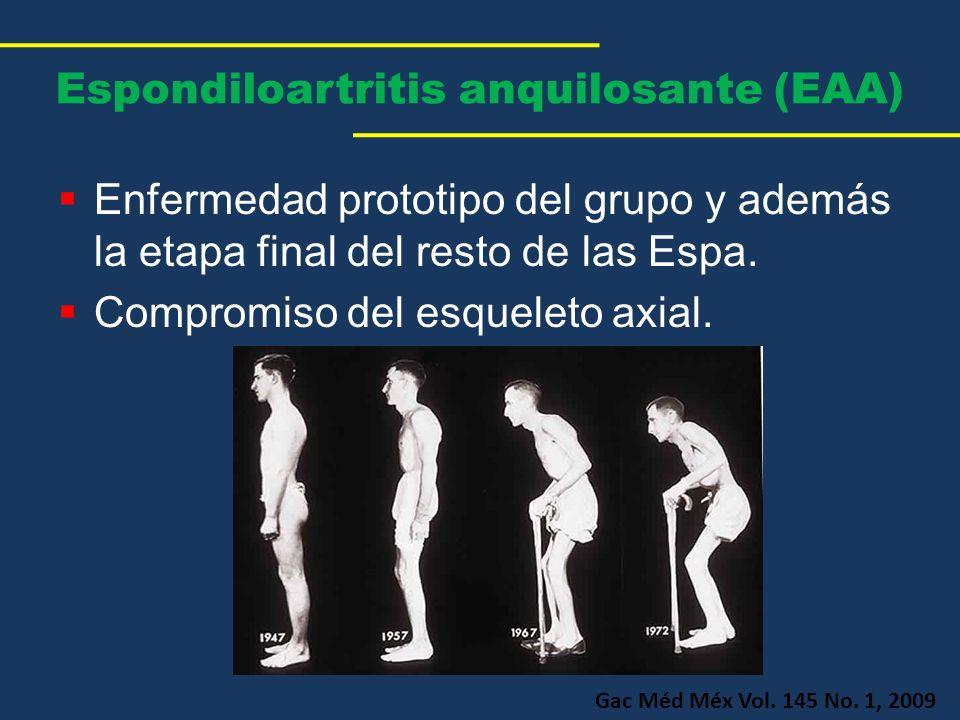 Espondiloartritis anquilosante (EAA)