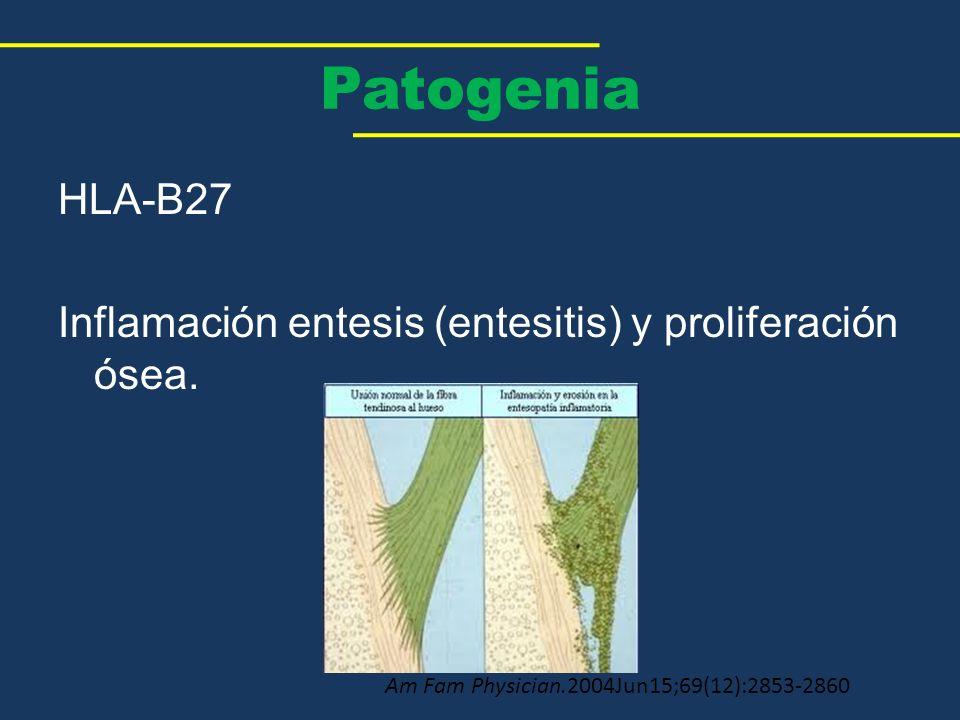Patogenia HLA-B27 Inflamación entesis (entesitis) y proliferación ósea.