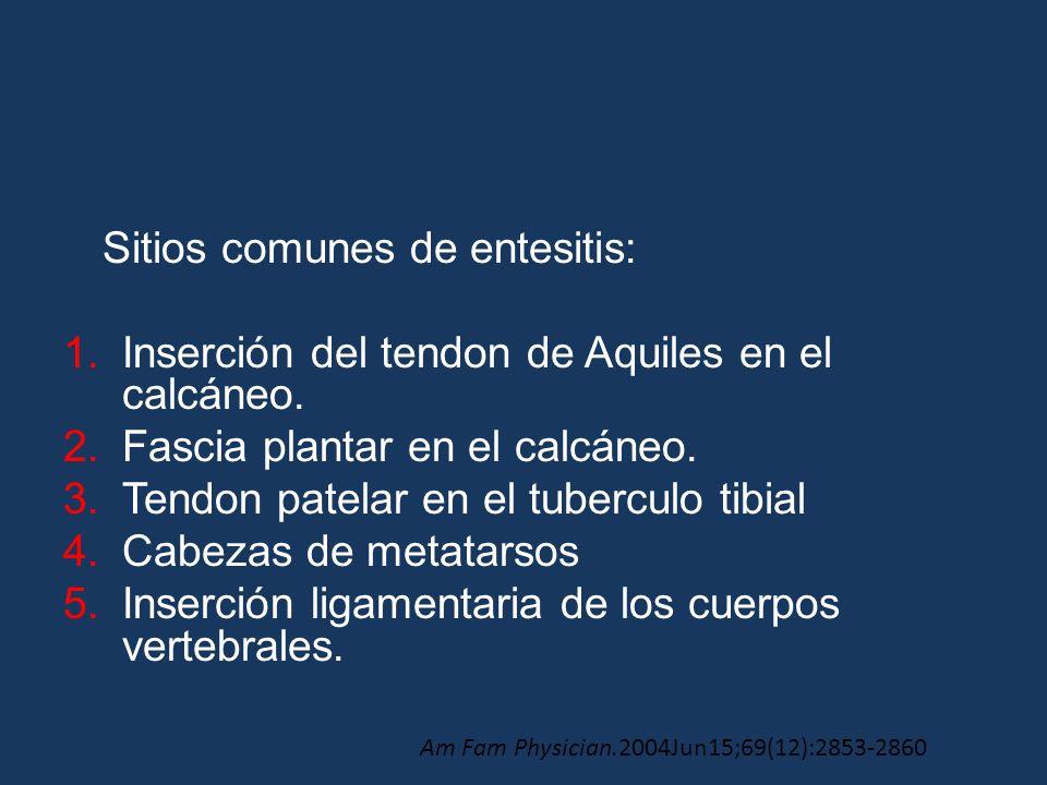 Sitios comunes de entesitis: