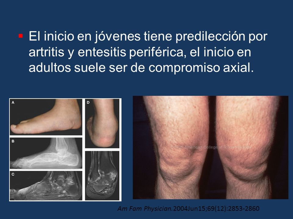 El inicio en jóvenes tiene predilección por artritis y entesitis periférica, el inicio en adultos suele ser de compromiso axial.