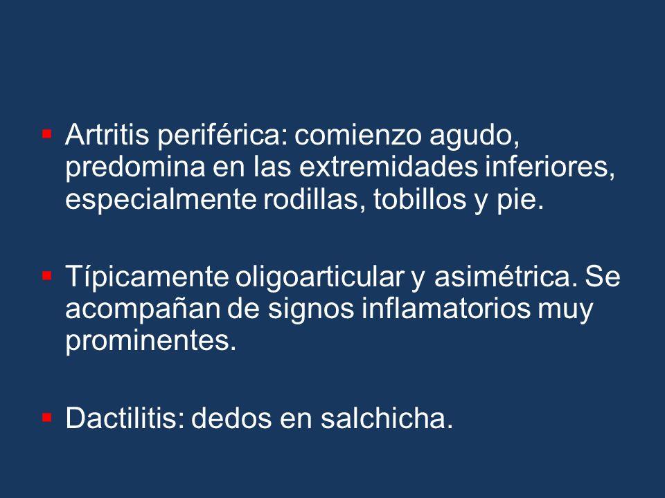 Artritis periférica: comienzo agudo, predomina en las extremidades inferiores, especialmente rodillas, tobillos y pie.