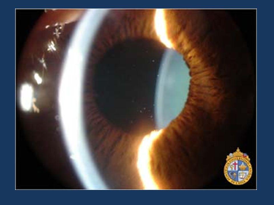 Iridociclitis Aguda (Uveitis Anterior Aguda)En la fotografía a la izquierda se puede ver tindall en la cámara anterior, que corresponde a células inflamatorias flotando en ella.(puntos blancos al centro de la pupila evidenciados con un haz de luz oblicuo)