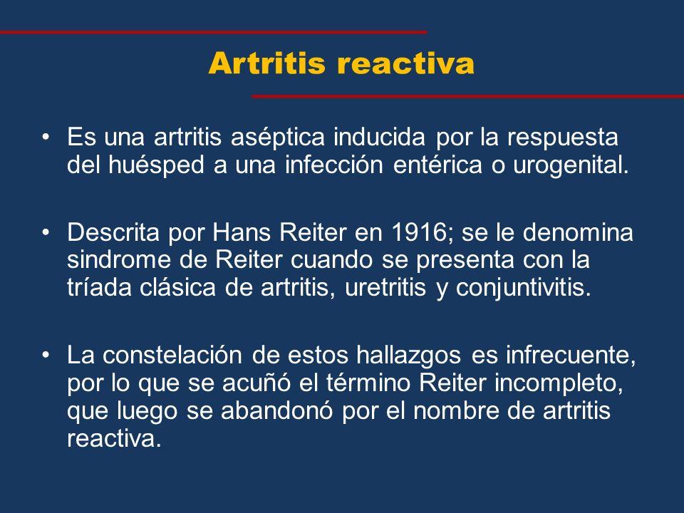 Artritis reactiva Es una artritis aséptica inducida por la respuesta del huésped a una infección entérica o urogenital.