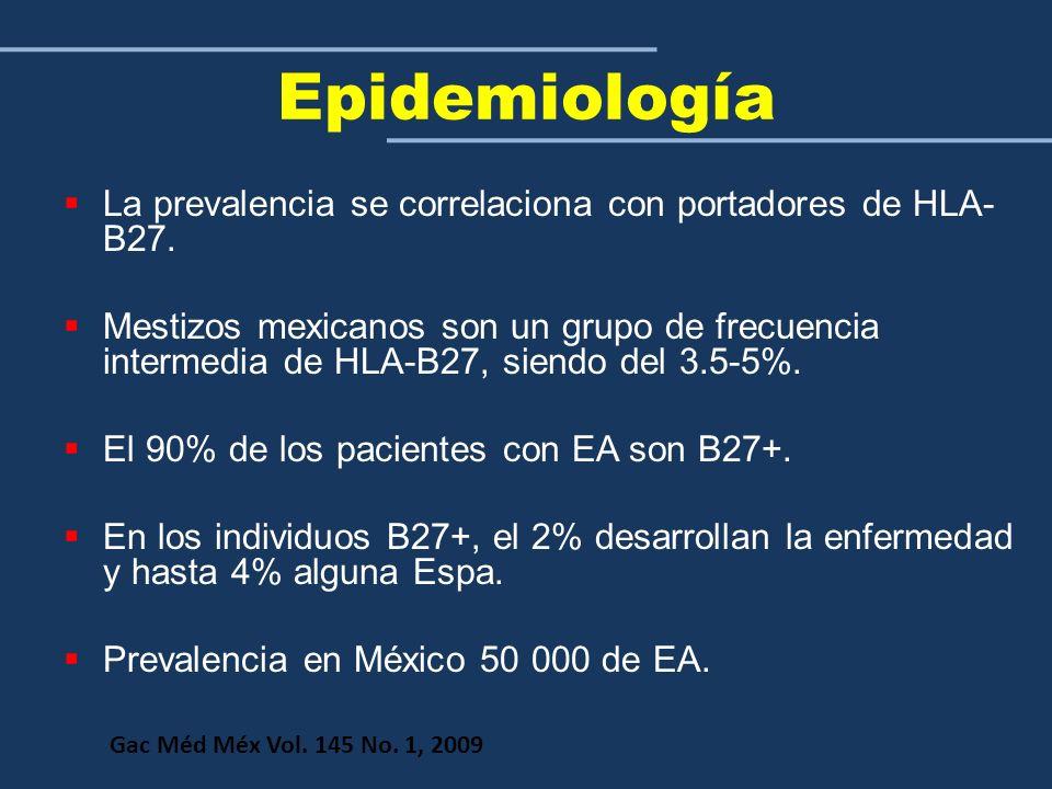 Epidemiología La prevalencia se correlaciona con portadores de HLA-B27.
