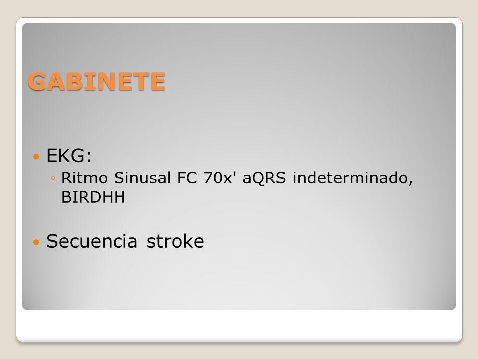 GABINETE EKG: Secuencia stroke