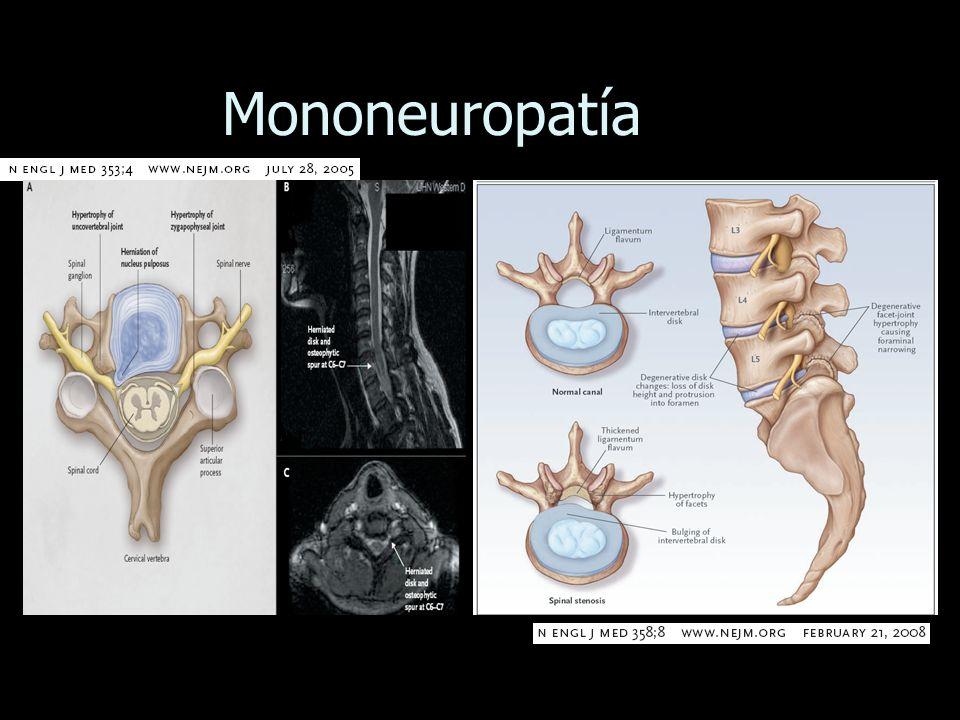 Mononeuropatía