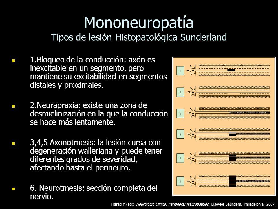 Mononeuropatía Tipos de lesión Histopatológica Sunderland