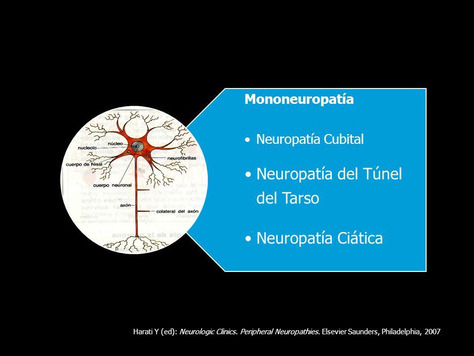 Neuropatía del Túnel del Tarso Neuropatía Ciática