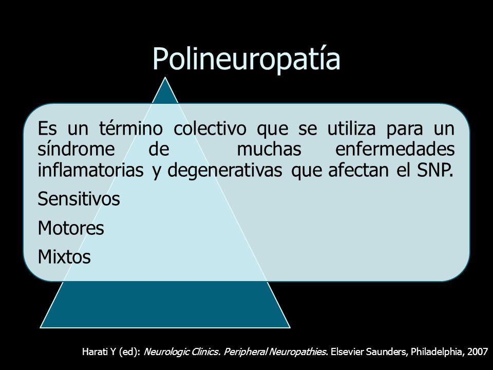 PolineuropatíaEs un término colectivo que se utiliza para un síndrome de muchas enfermedades inflamatorias y degenerativas que afectan el SNP.
