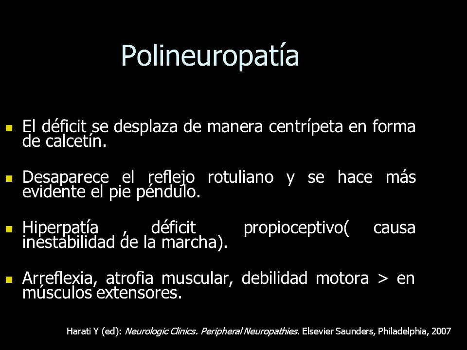 Polineuropatía El déficit se desplaza de manera centrípeta en forma de calcetín.