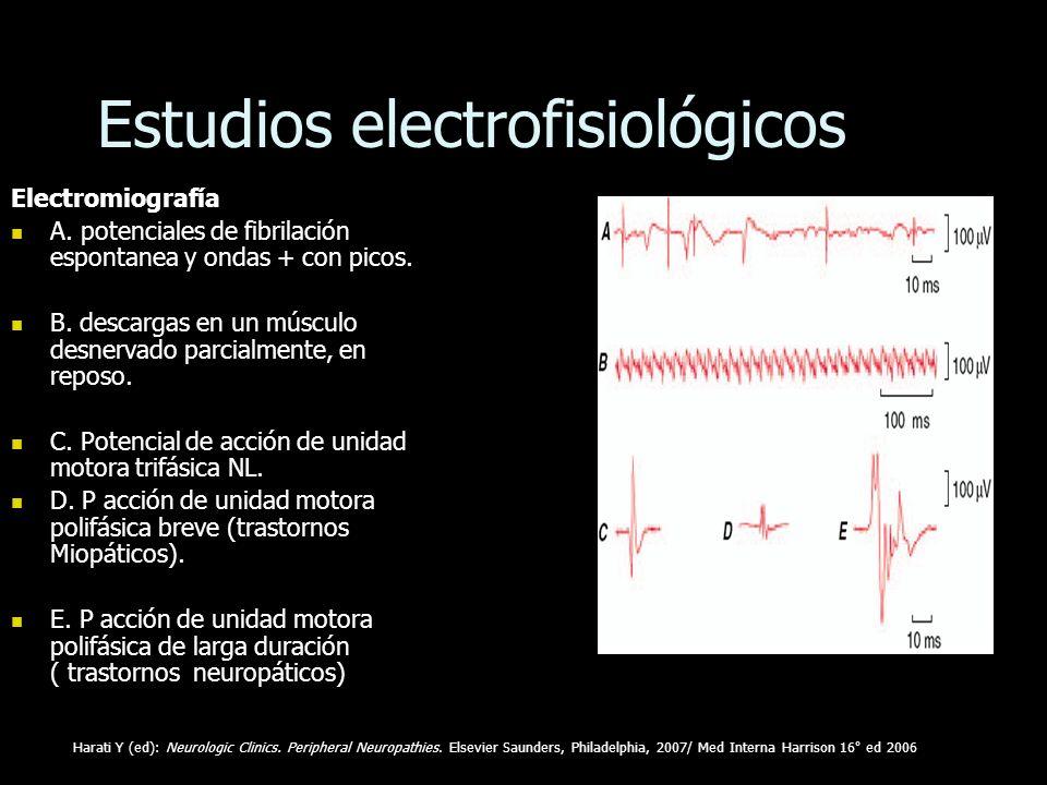 Estudios electrofisiológicos