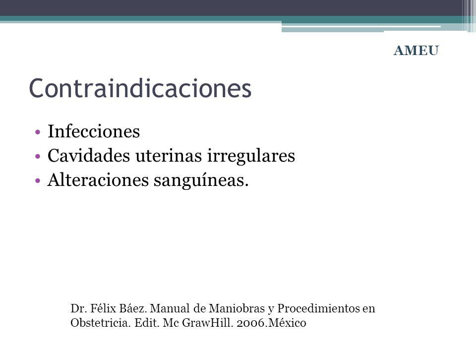 Contraindicaciones Infecciones Cavidades uterinas irregulares