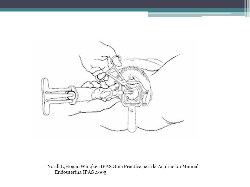 Yordi L,Hogan Wingker.IPAS Guía Practica para la Aspiración Manual Endouterina IPAS .1995