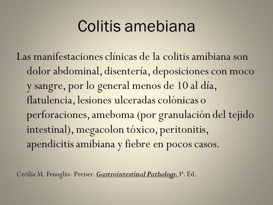 Colitis amebiana