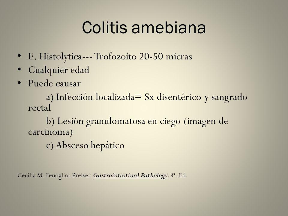 Colitis amebiana E. Histolytica--- Trofozoíto 20-50 micras