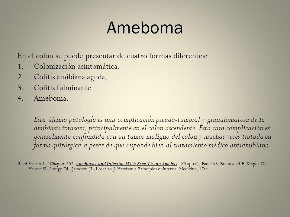 Ameboma En el colon se puede presentar de cuatro formas diferentes: