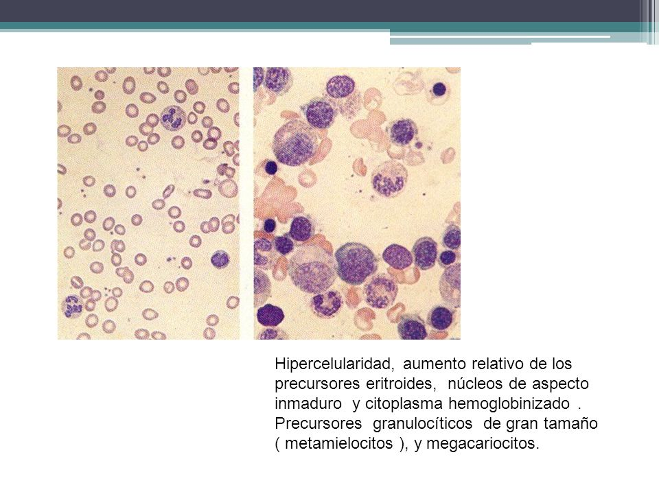 Hipercelularidad, aumento relativo de los precursores eritroides, núcleos de aspecto inmaduro y citoplasma hemoglobinizado .