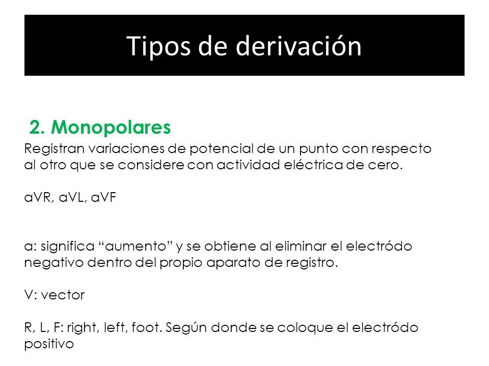 Tipos de derivación 2. Monopolares Precordiales