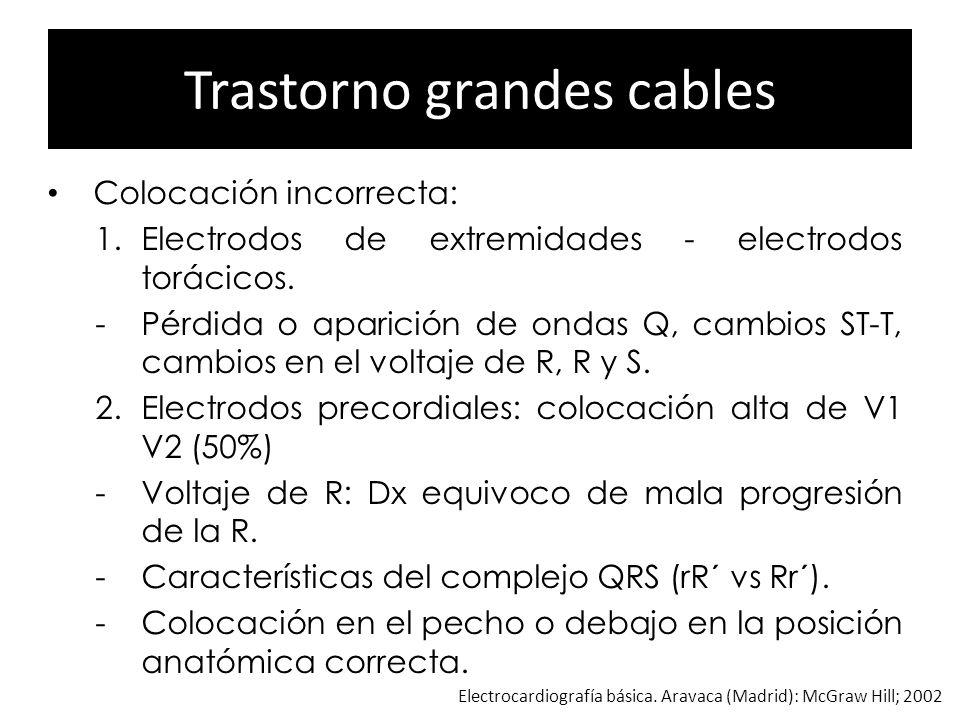 Trastorno grandes cables