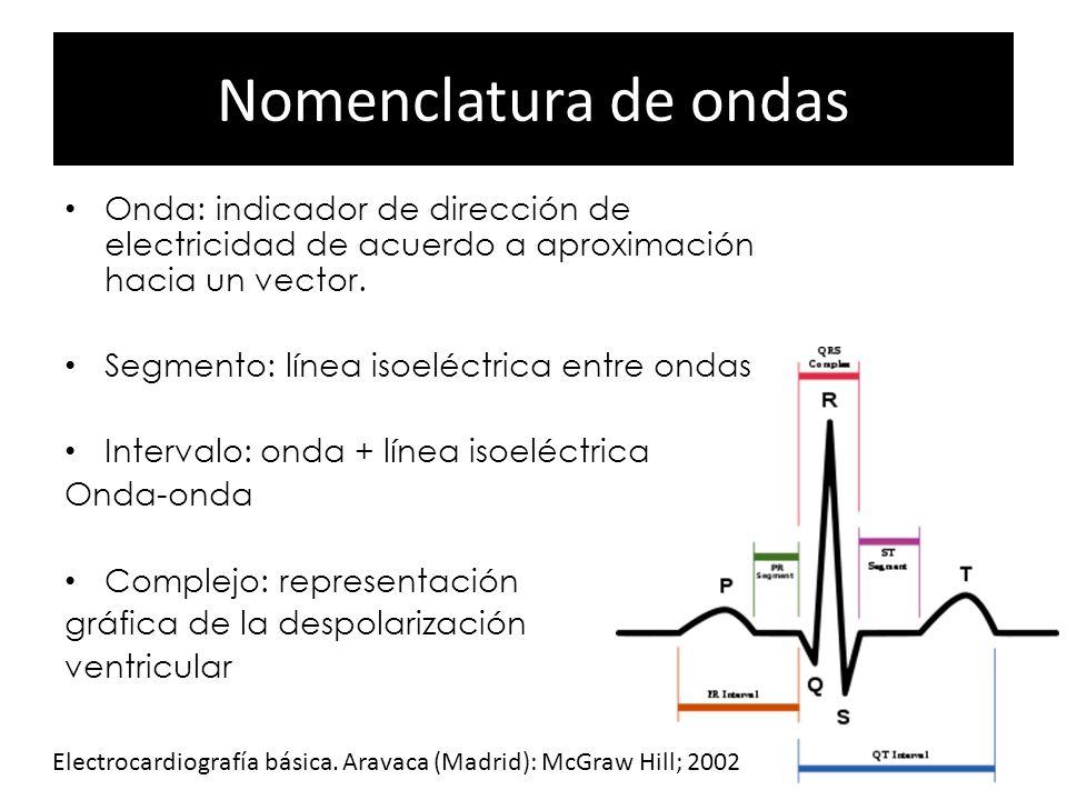Nomenclatura de ondas Onda: indicador de dirección de electricidad de acuerdo a aproximación hacia un vector.