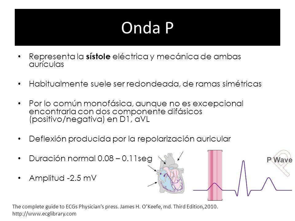 Onda P Representa la sístole eléctrica y mecánica de ambas aurículas