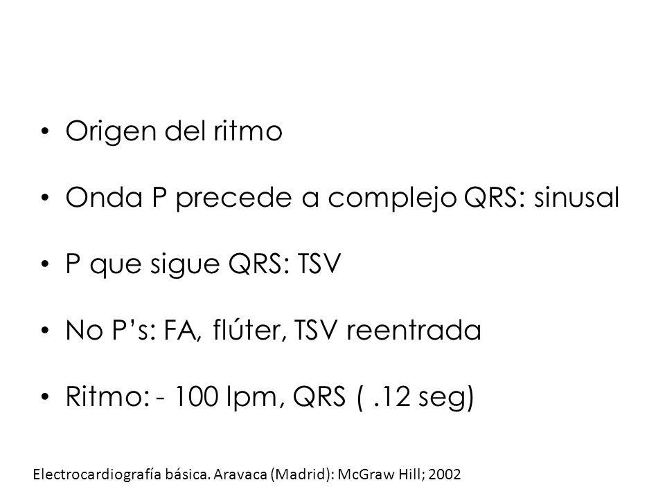 Onda P precede a complejo QRS: sinusal P que sigue QRS: TSV
