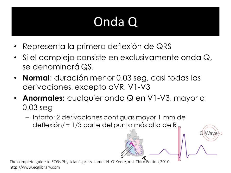 Onda Q Representa la primera deflexión de QRS
