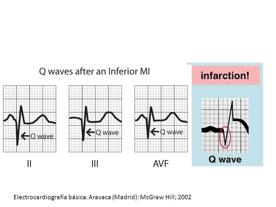 Electrocardiografía básica. Aravaca (Madrid): McGraw Hill; 2002