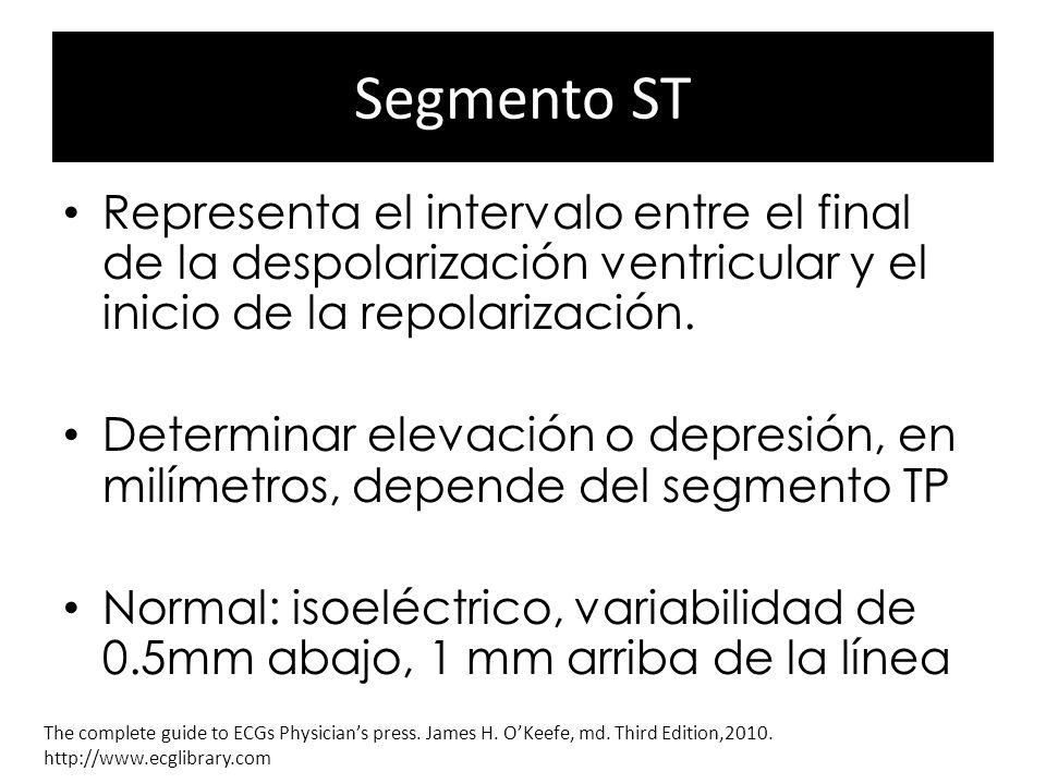 Segmento ST Representa el intervalo entre el final de la despolarización ventricular y el inicio de la repolarización.