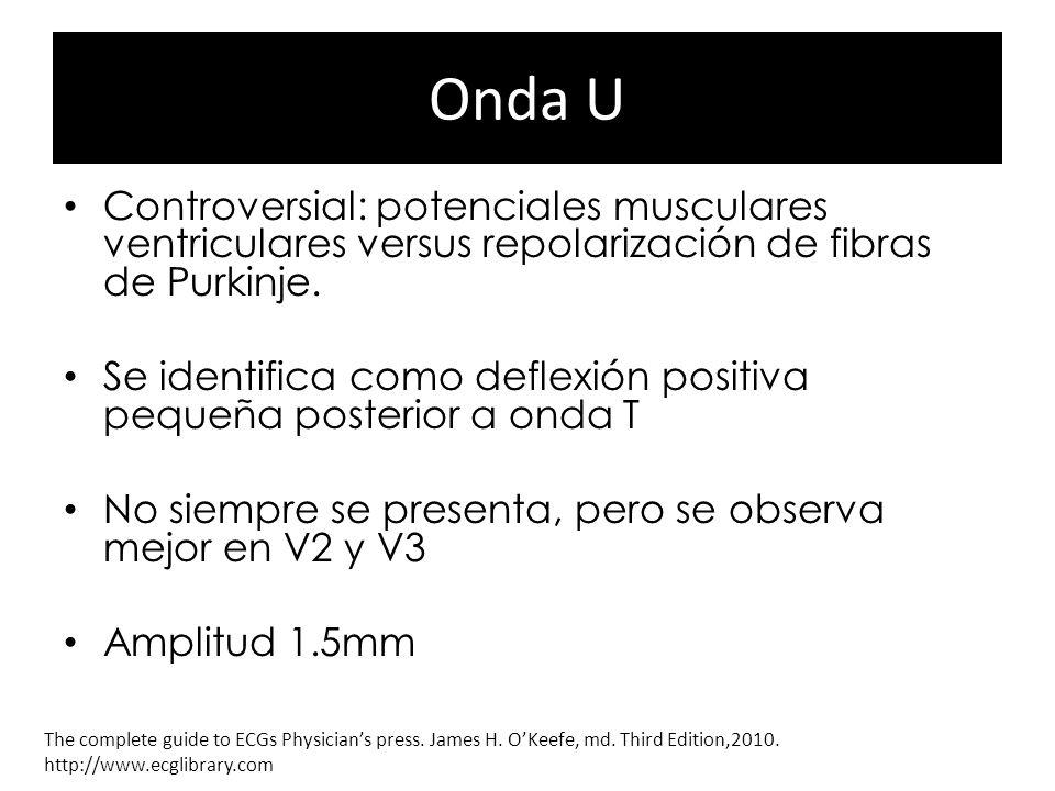 Onda U Controversial: potenciales musculares ventriculares versus repolarización de fibras de Purkinje.